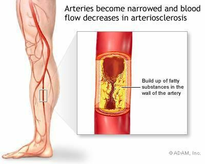 atherosclerosis process images _ Peripheral Artery Disease In-De