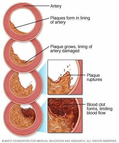 Arteriosclerosis _ atherosclerosis - Symptoms and causes.jfif